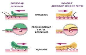 Шугаринг и воскавая эпиляция